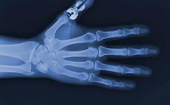 X-ray hand with violin thumb background